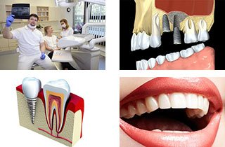 are dental implants permanent