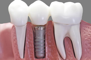 Dental implant problem