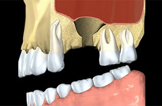 dental bone graft