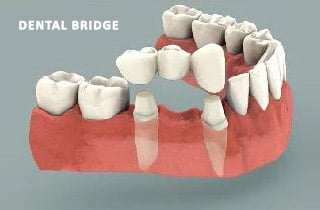 dental bridge or dental implant