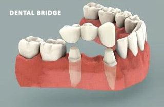 dental-bridge-or-dental-implant