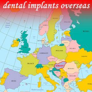 dental implants overseas