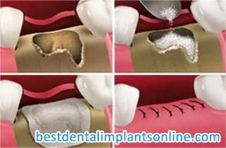 dental bone graft material