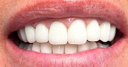 Hollywood smile crowns