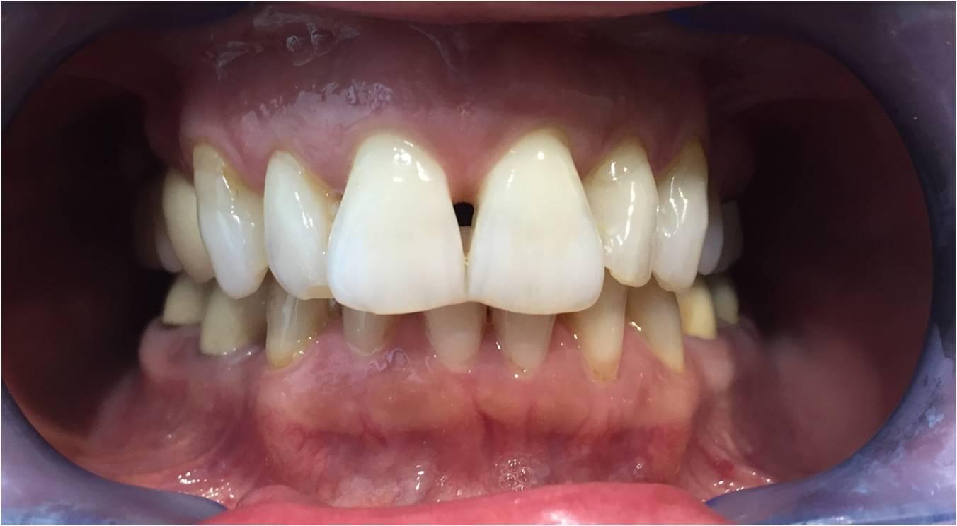teeth veneers before and after