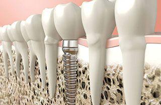 costs-of-dental-treatments