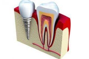 dental-help