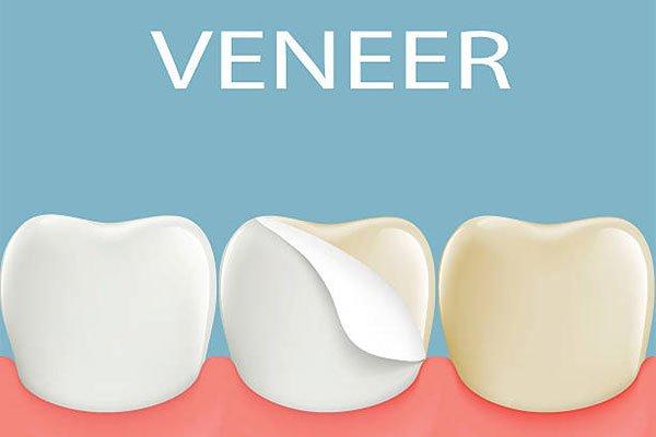 indirect veneers