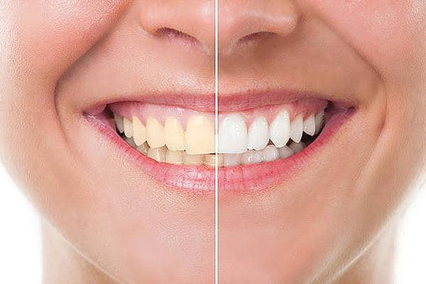 best-way-to-brush-teeth